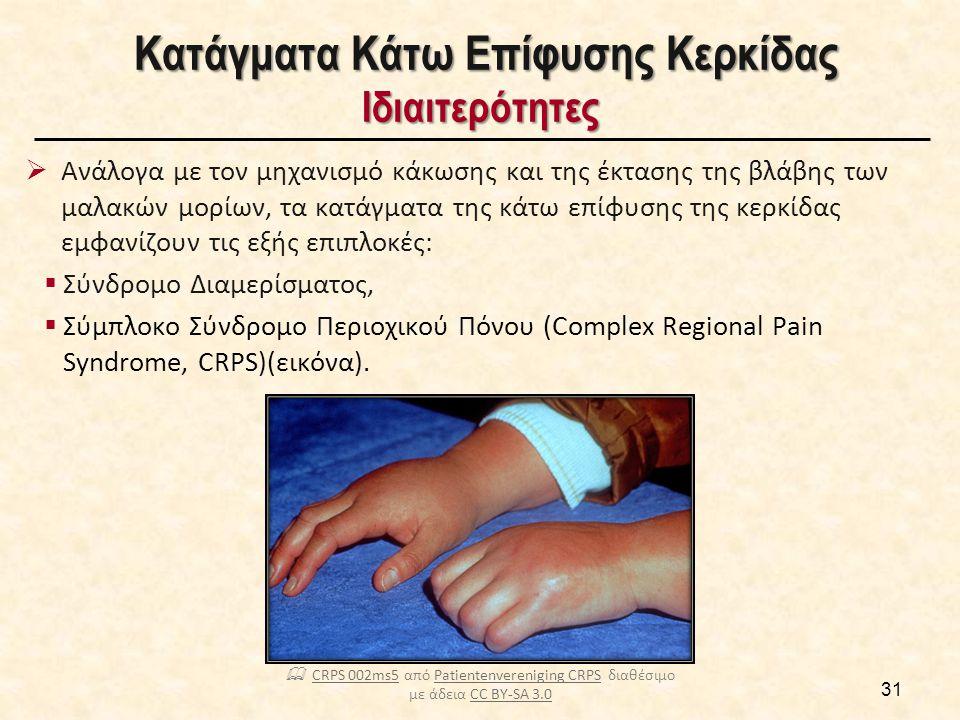 Κατάγματα Κάτω Επίφυσης Κερκίδος Μέθοδοι Χειρουργικής Σταθεροποίησης [1/2]